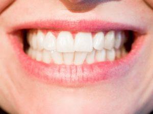 Dentist Monroe